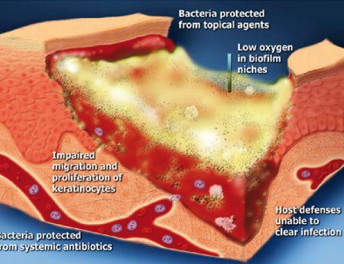 La herida crónica y Uso correcto e incorrecto de antibiótico en enfermedades osteoarticulares