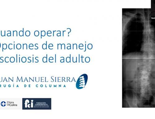 Cuándo operar y opciones de manejo quirúrgico para la escoliosis del adulto